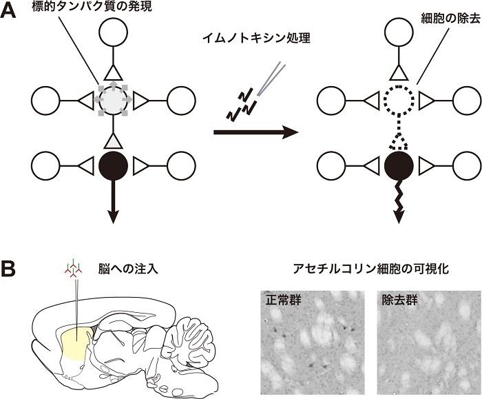 線条体アセチルコリン神経細胞の選択的除去