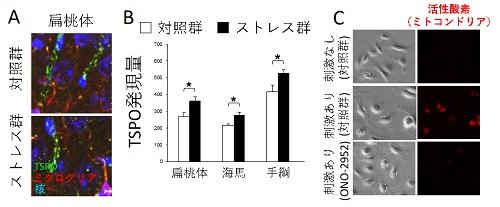 慢性ストレスによるミクログリアのTSPO活性化