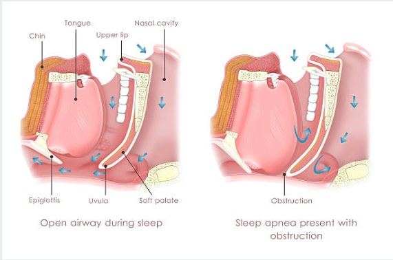 Clear and blocked airway during sleep.