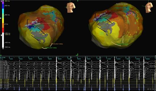 心外膜からの心室頻拍のマッピングと通電で心室頻拍が停止した図