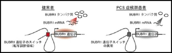 健常者とPCS症候群患者の遺伝子スイッチを比較した図