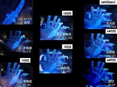 お茶目な先生は、ご自分の手(小指)で皮膚への固定化を実験