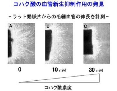 コハク酸の血管新生抑制作用の発見の図