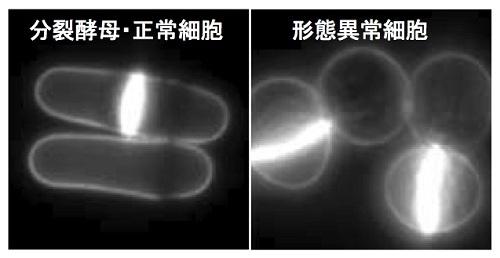 図1. 分裂酵母の正常細胞と形態異常変異体