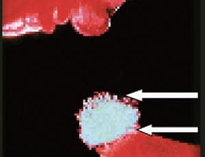 卵巣から排卵される卵子卵丘細胞複合体