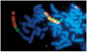 ヒトがん細胞内の遺伝子増幅