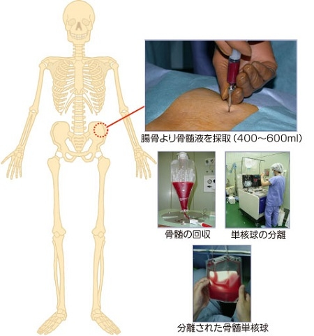 自家骨骨髄細胞移植(骨髄採取の流れ図)