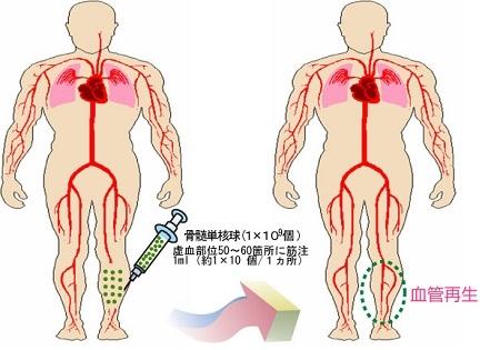 自家骨骨髄細胞移植(治療法に関する図)