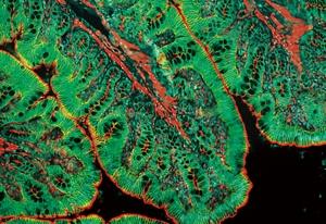 タイトジャンクション分子の免疫染色像 (ラット大腸)