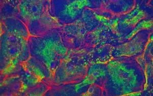培養ウシ乳腺細胞のサイトケラチン分布